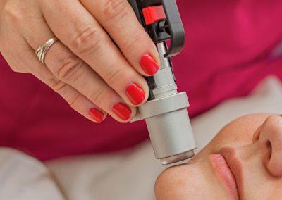 laserova-epilacia-klinika-esthederm-BB