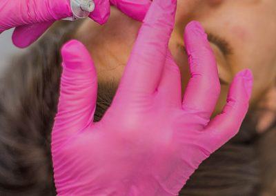 vyhladenie-vrasok-kyselina-hyaluronova-klinika-esthederm-05-BB
