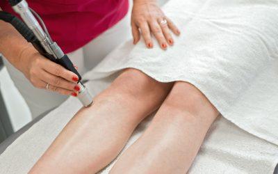 Laserová epilácia a opálená pokožka: Môžu byť kamaráti?